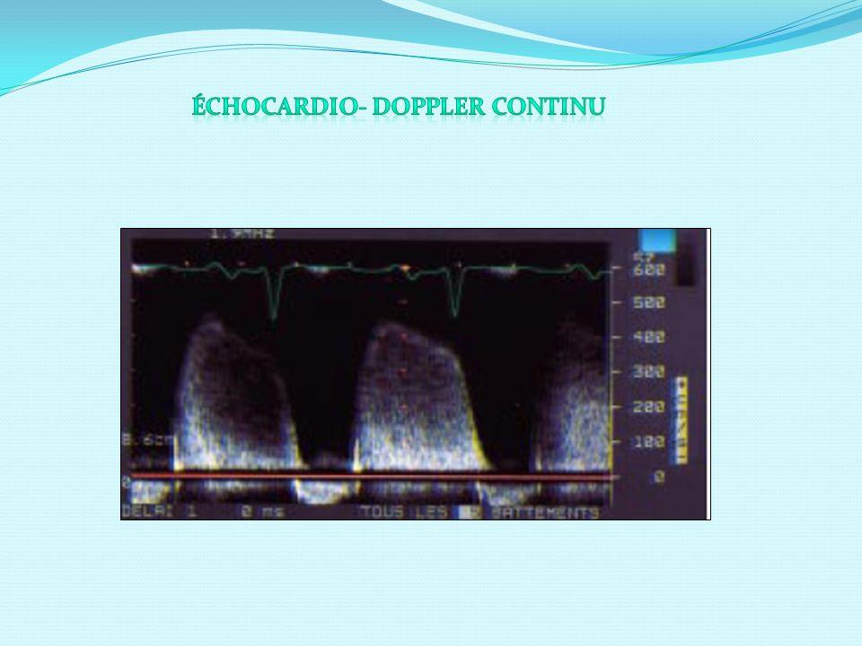 Échocardio- Doppler Continu