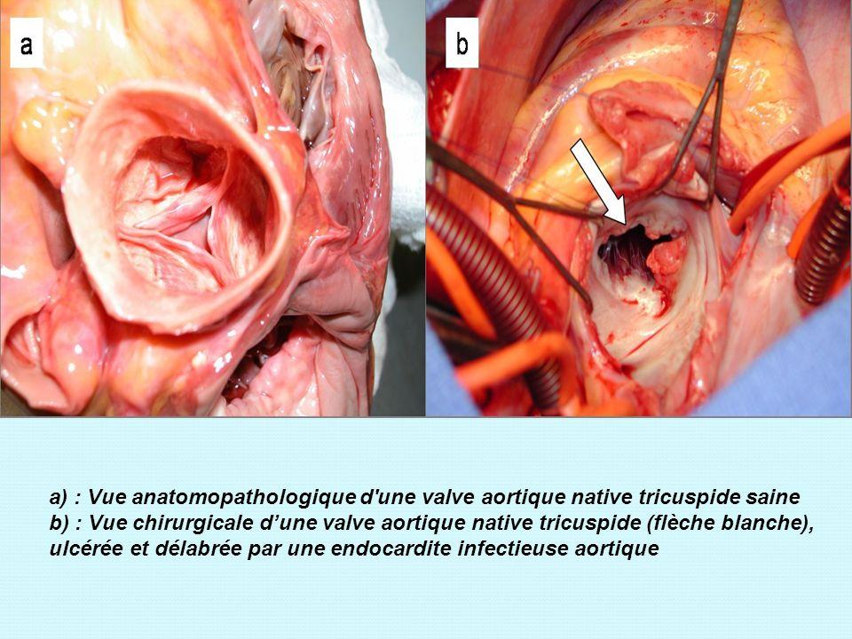 a) : Vue anatomopathologique d une valve aortique native tricuspide saine b) : Vue chirurgicale d'une valve aortique native tricuspide (flèche blanche), ulcérée et délabrée par une endocardite infectieuse aortique