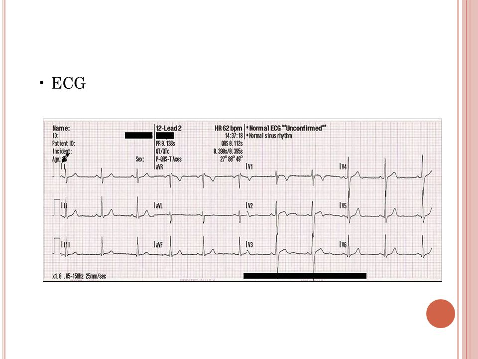 • ECG