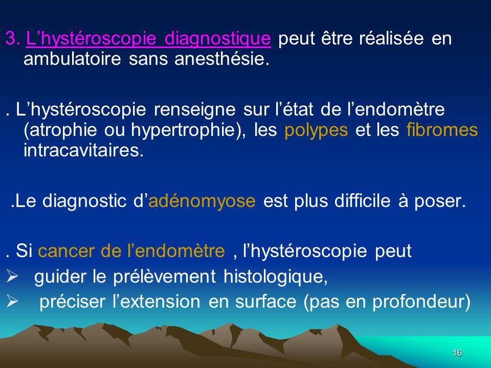 3. L'hystéroscopie diagnostique peut être réalisée en ambulatoire sans anesthésie.