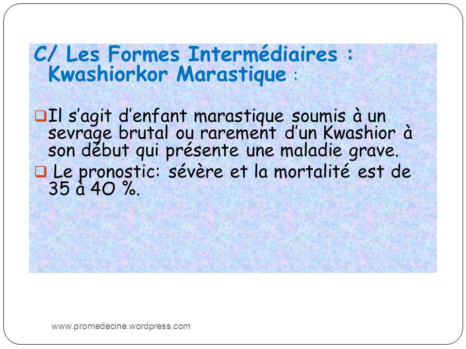 C/ Les Formes Intermédiaires : Kwashiorkor Marastique :