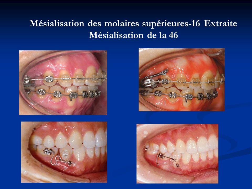 Mésialisation des molaires supérieures-16 Extraite Mésialisation de la 46