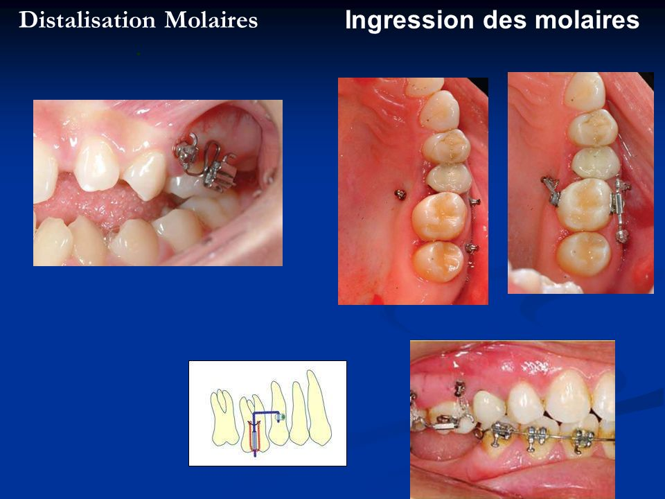 Distalisation Molaires .
