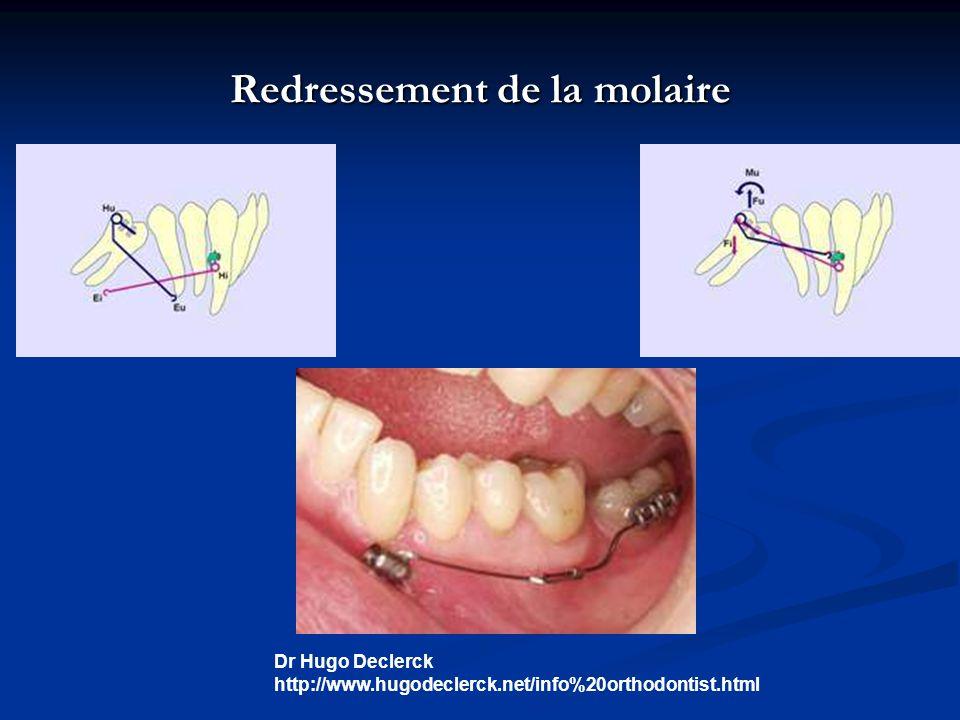 Redressement de la molaire