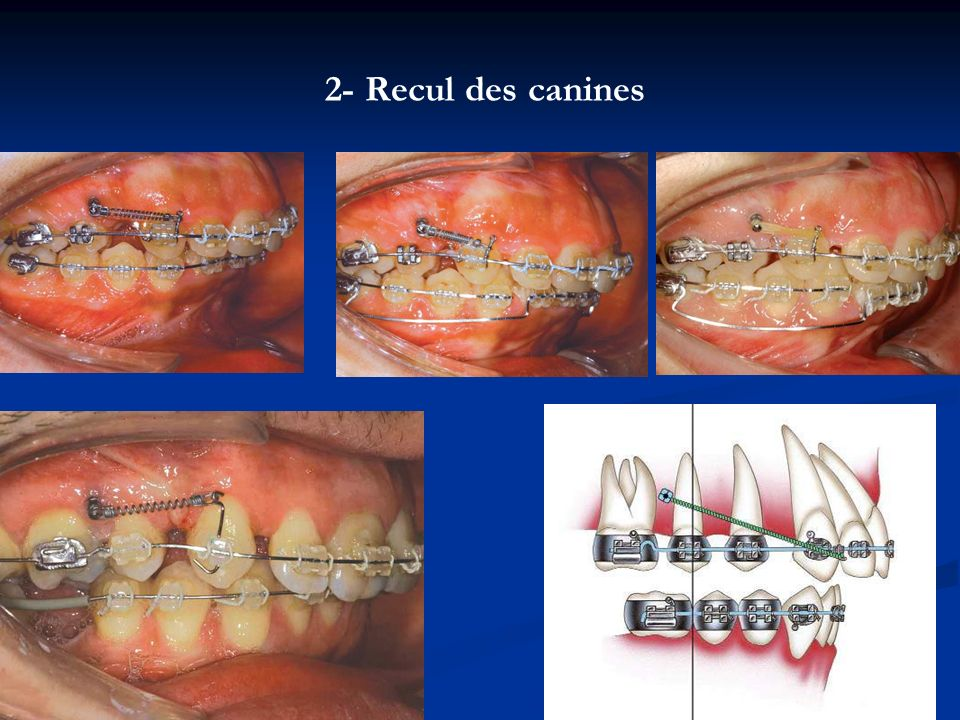 2- Recul des canines