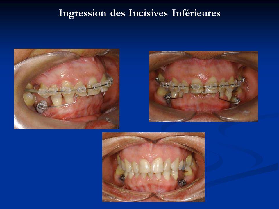Ingression des Incisives Inférieures