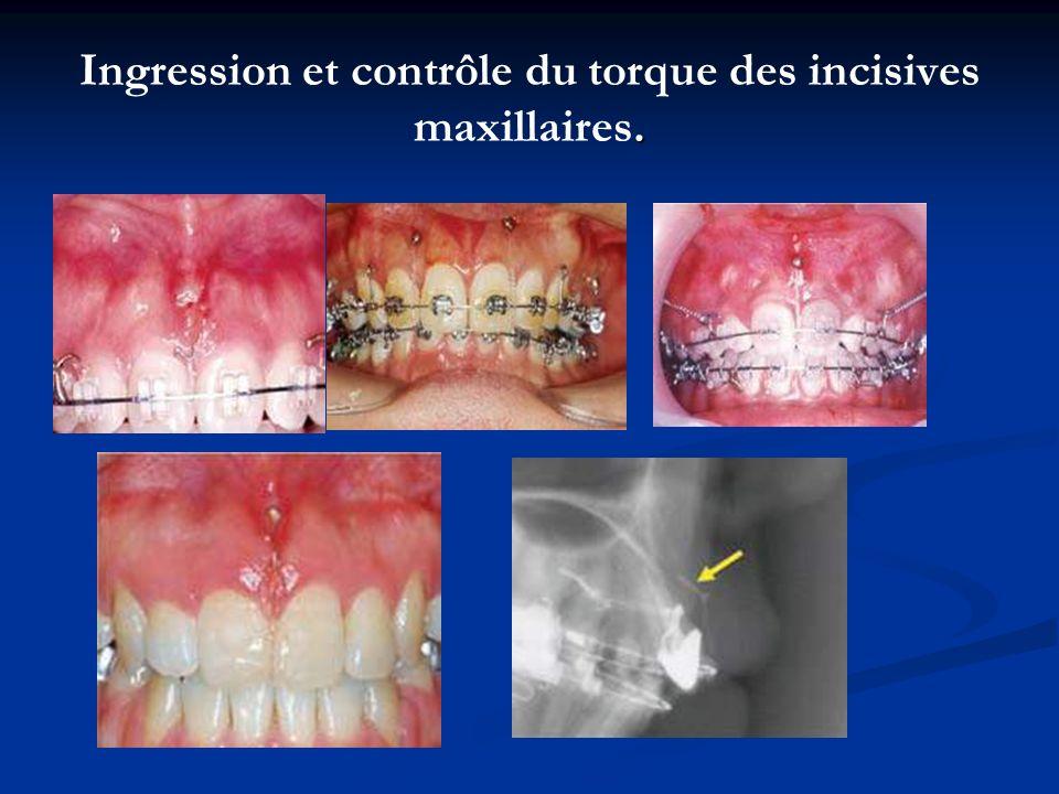 Ingression et contrôle du torque des incisives maxillaires.