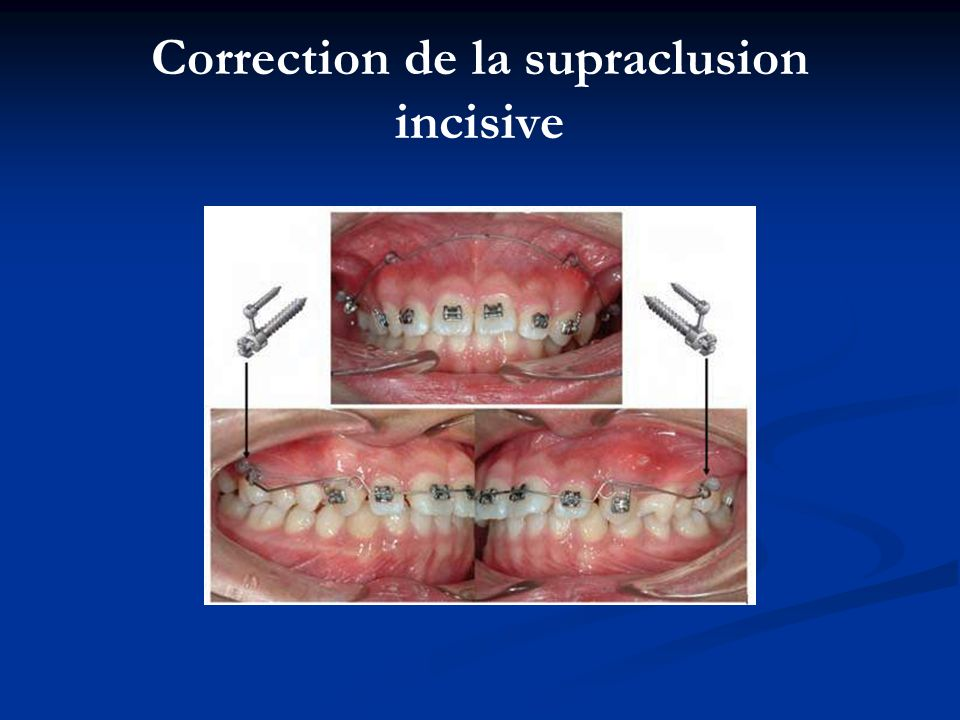 Correction de la supraclusion incisive
