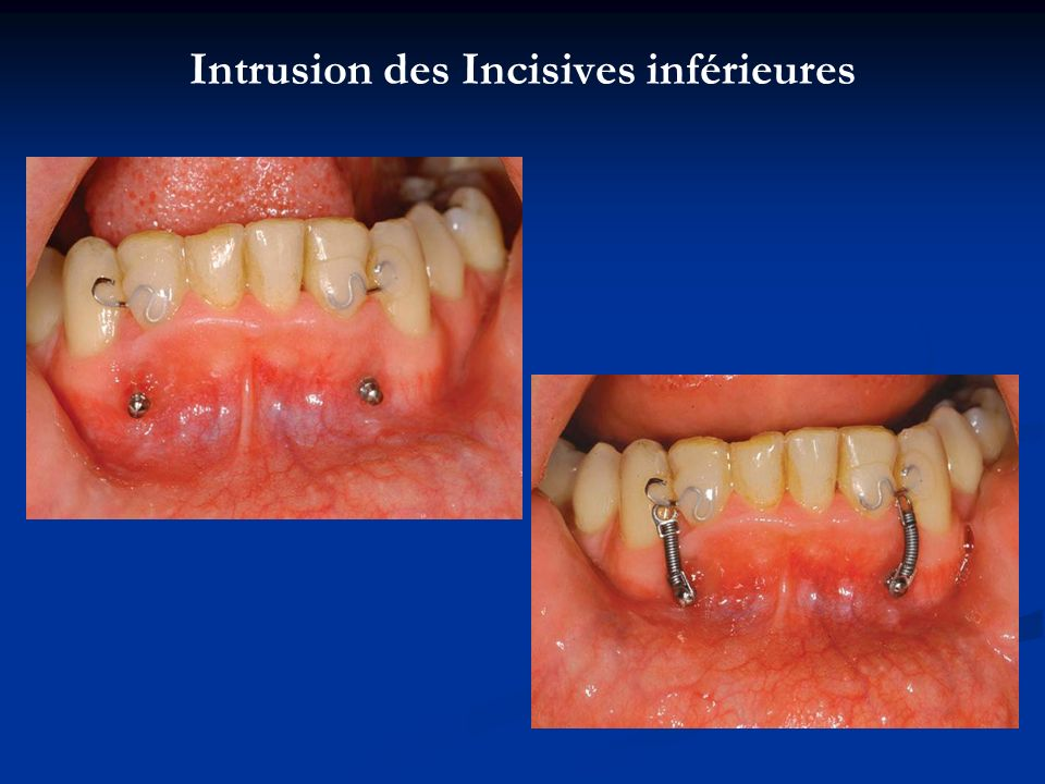 Intrusion des Incisives inférieures