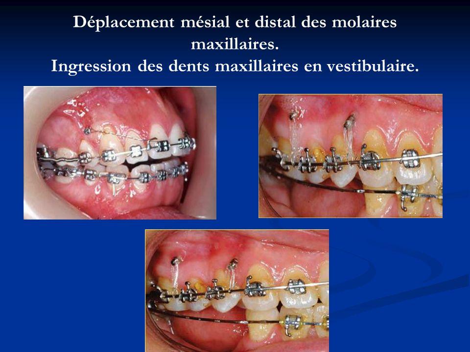 Déplacement mésial et distal des molaires maxillaires