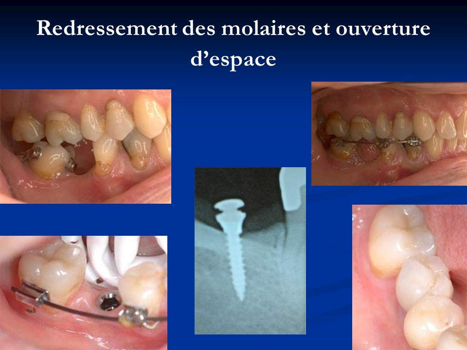 Redressement des molaires et ouverture d'espace