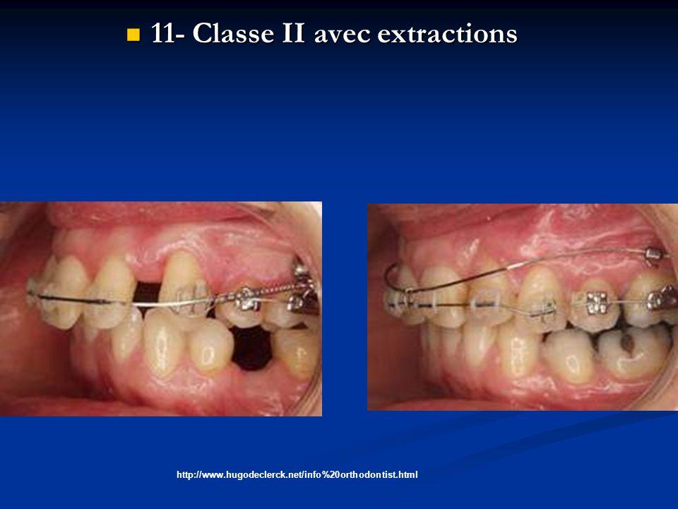 11- Classe II avec extractions