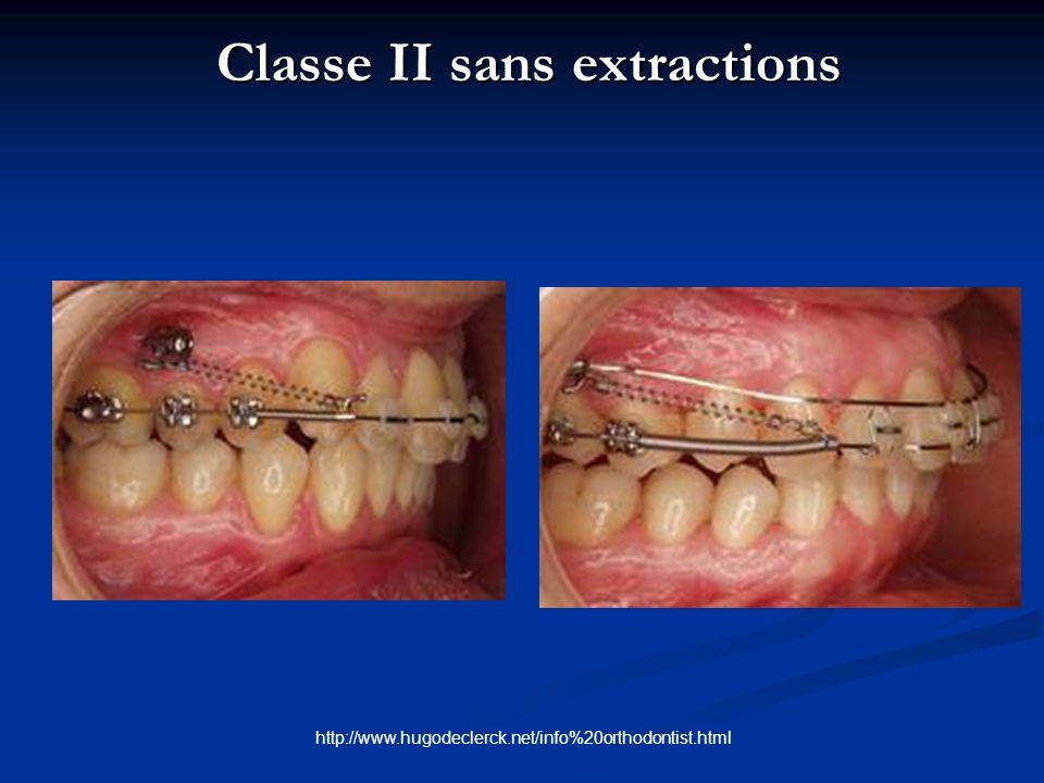 Classe II sans extractions