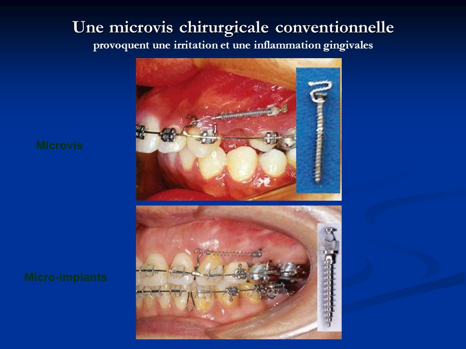 Une microvis chirurgicale conventionnelle provoquent une irritation et une inflammation gingivales