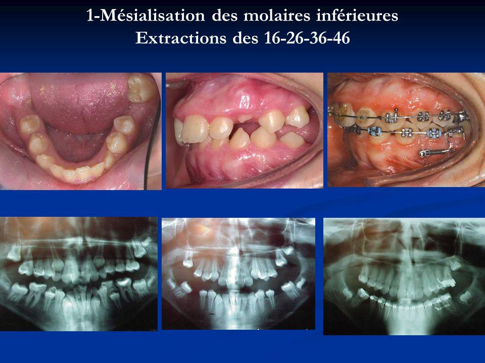 1-Mésialisation des molaires inférieures Extractions des 16-26-36-46