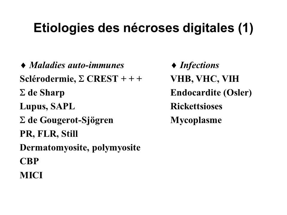 Etiologies des nécroses digitales (1)