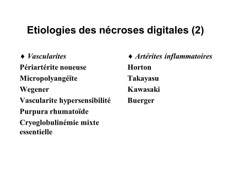 Etiologies des nécroses digitales (2)