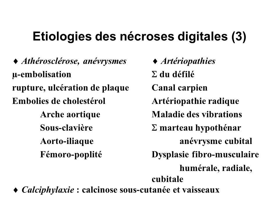Etiologies des nécroses digitales (3)