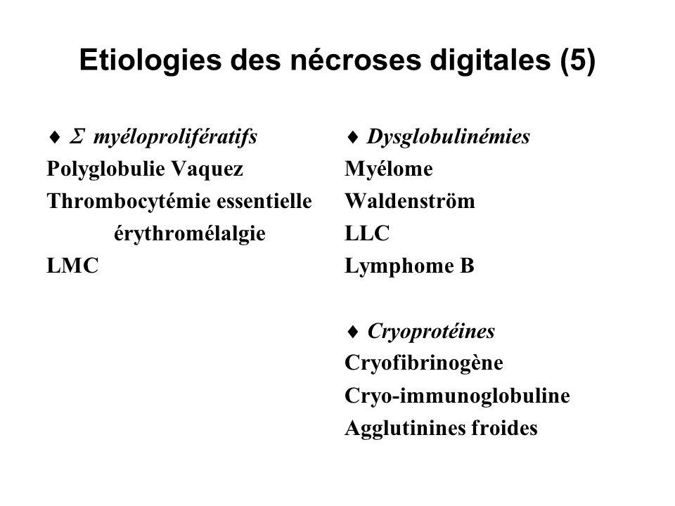 Etiologies des nécroses digitales (5)