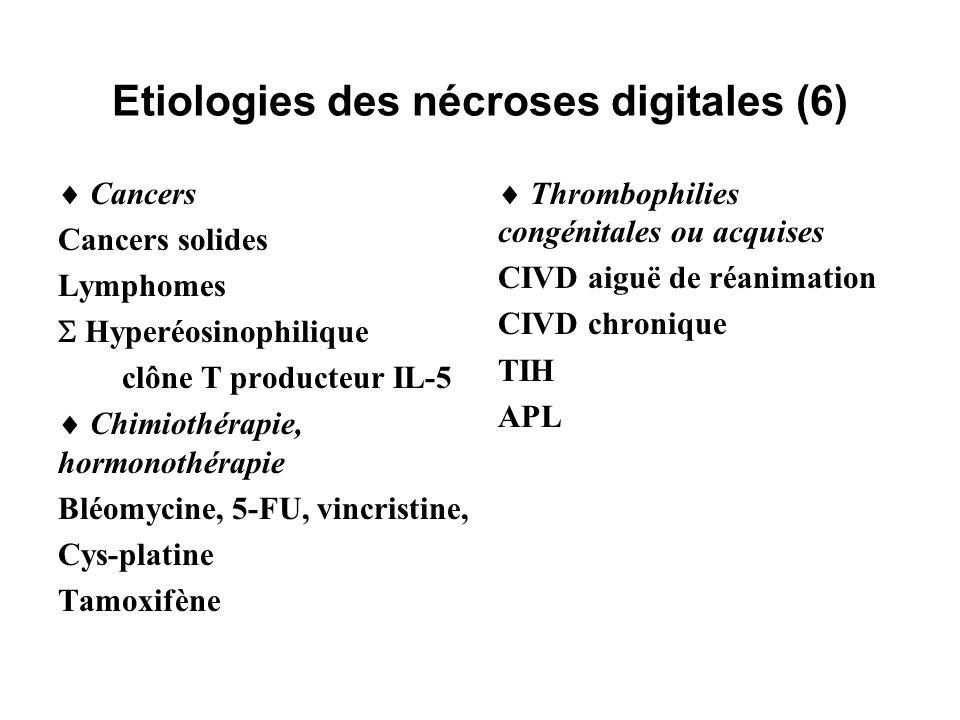 Etiologies des nécroses digitales (6)