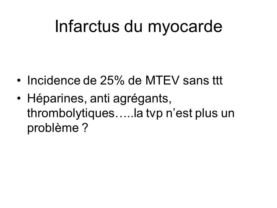 Infarctus du myocarde Incidence de 25% de MTEV sans ttt