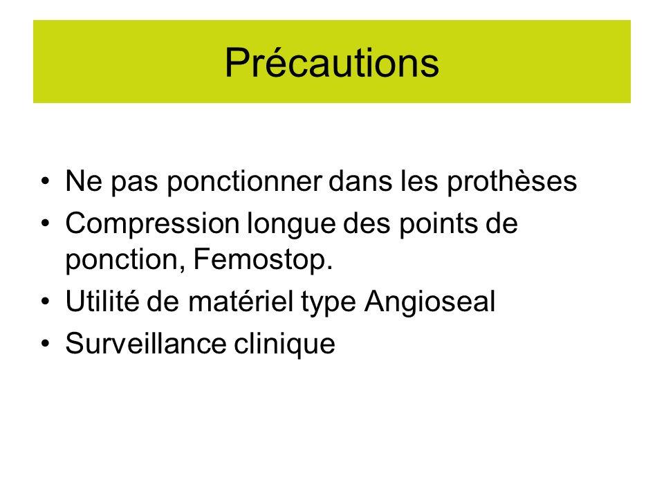 Précautions Ne pas ponctionner dans les prothèses