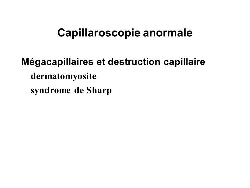 Capillaroscopie anormale
