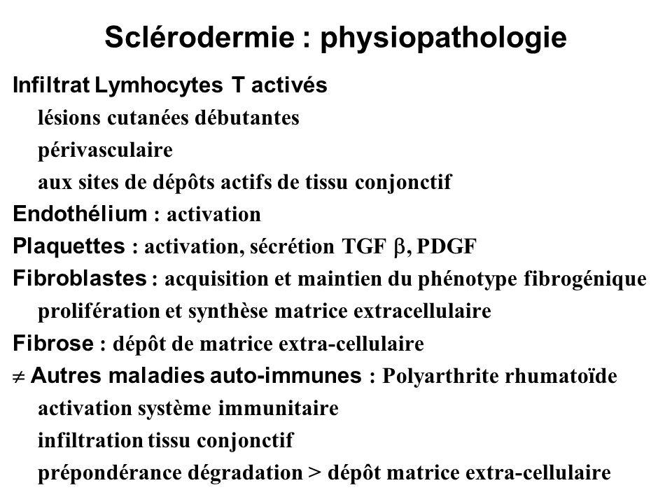 Sclérodermie : physiopathologie