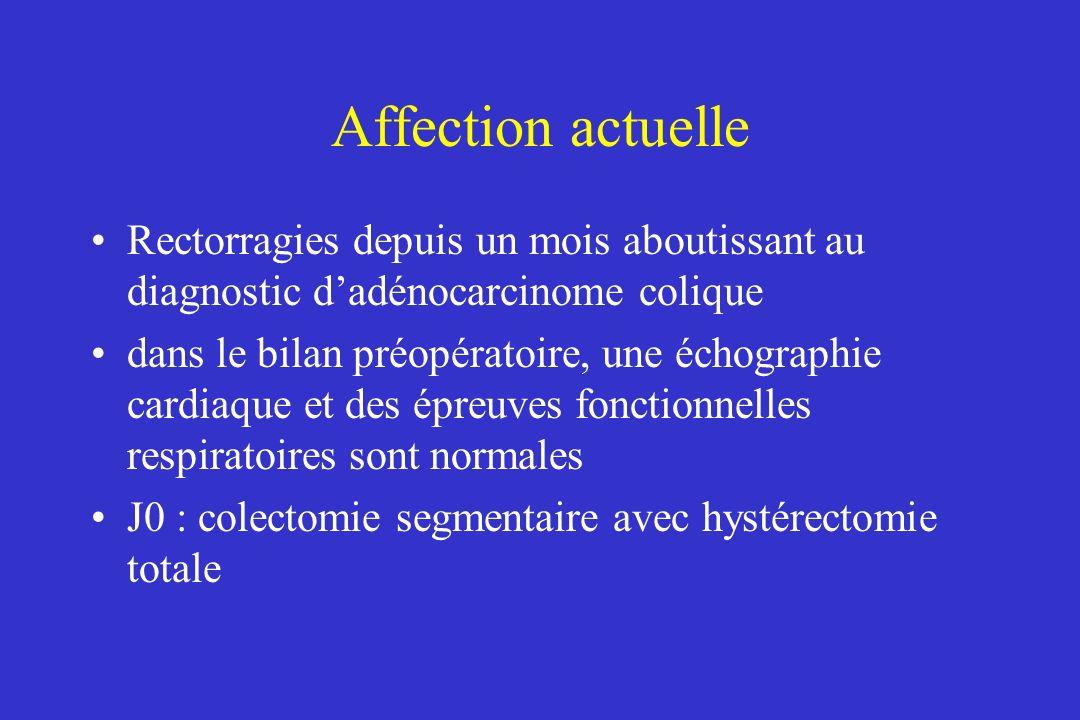 Affection actuelle Rectorragies depuis un mois aboutissant au diagnostic d'adénocarcinome colique.