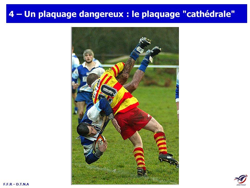 4 – Un plaquage dangereux : le plaquage cathédrale