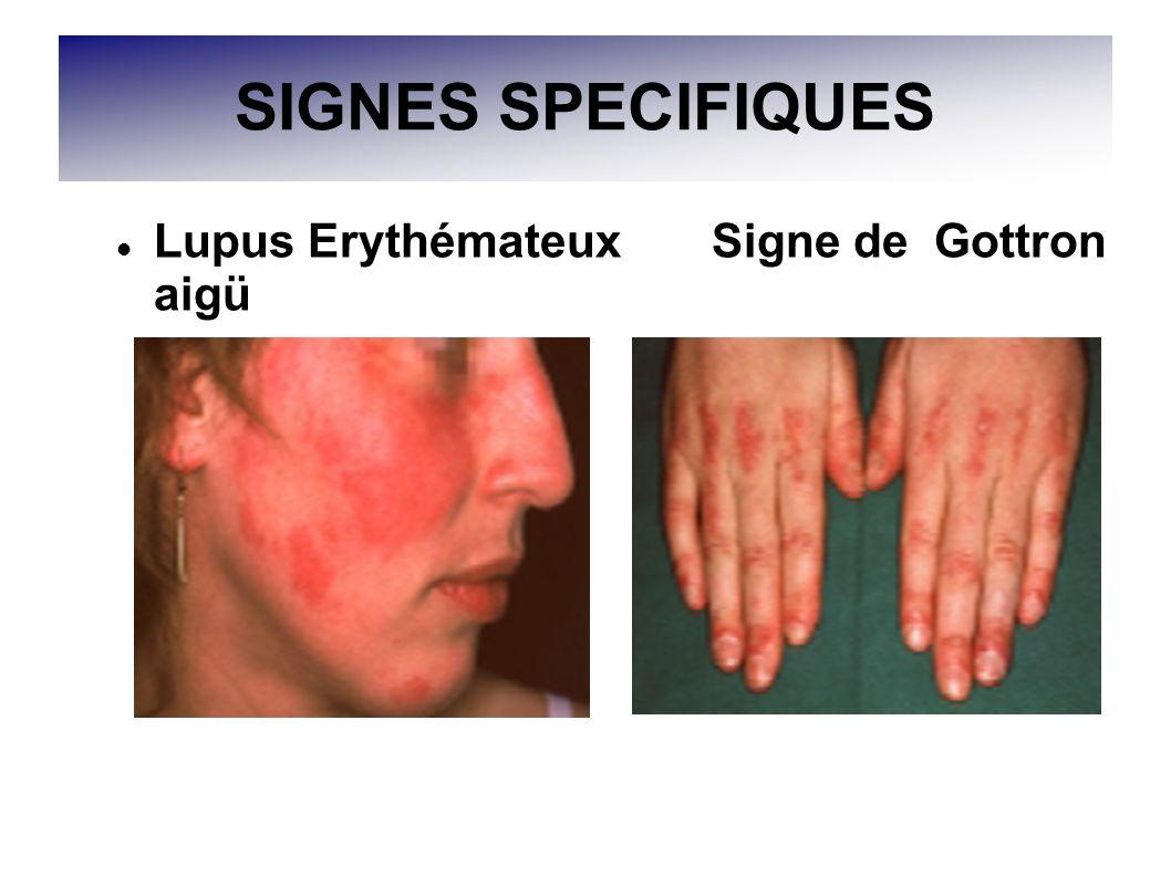 SIGNES SPECIFIQUES Lupus Erythémateux Signe de Gottron aigü