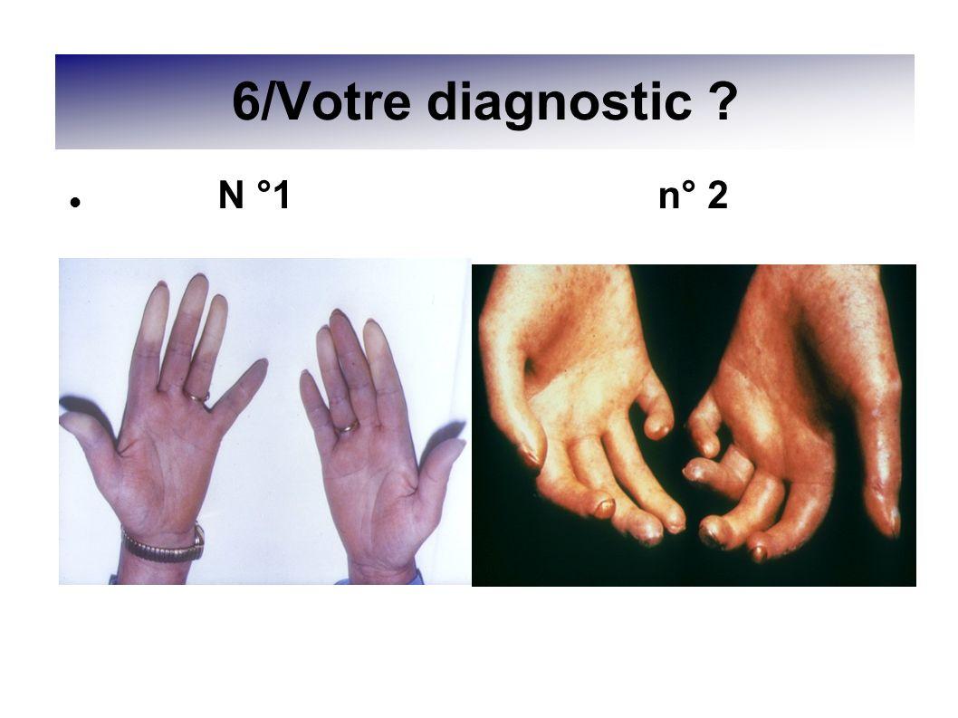 6/Votre diagnostic N °1 n° 2