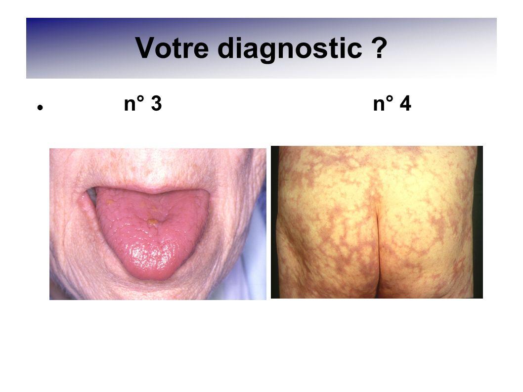 Votre diagnostic n° 3 n° 4