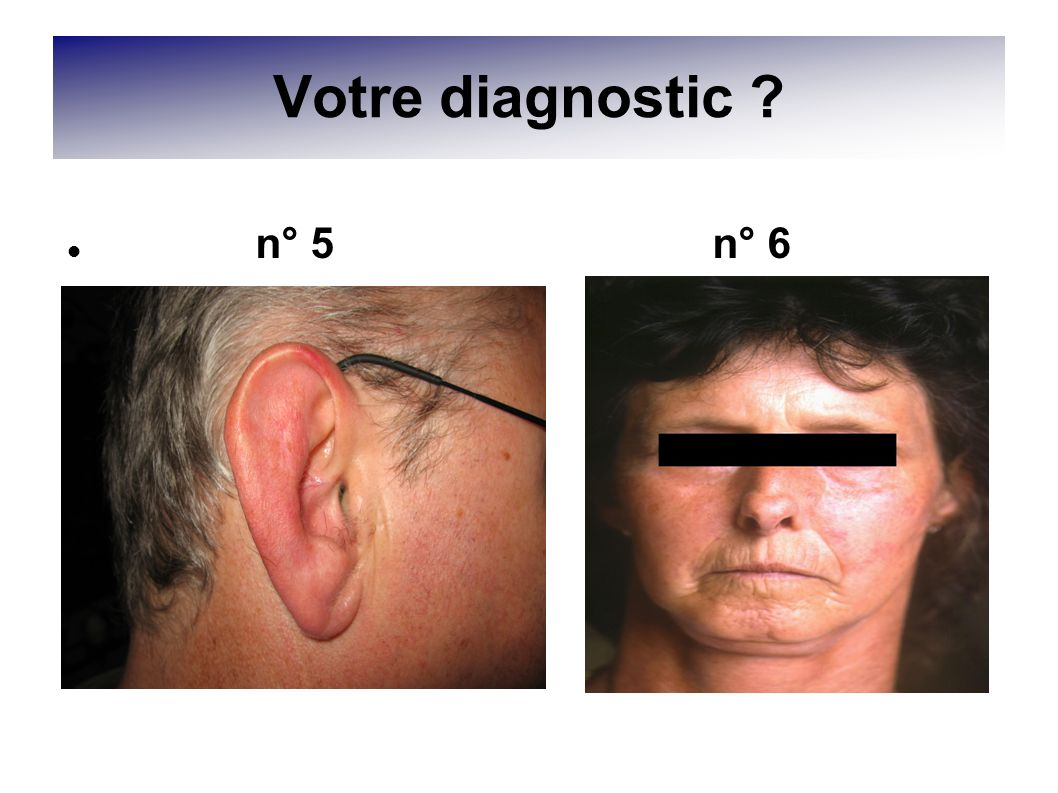 Votre diagnostic n° 5 n° 6