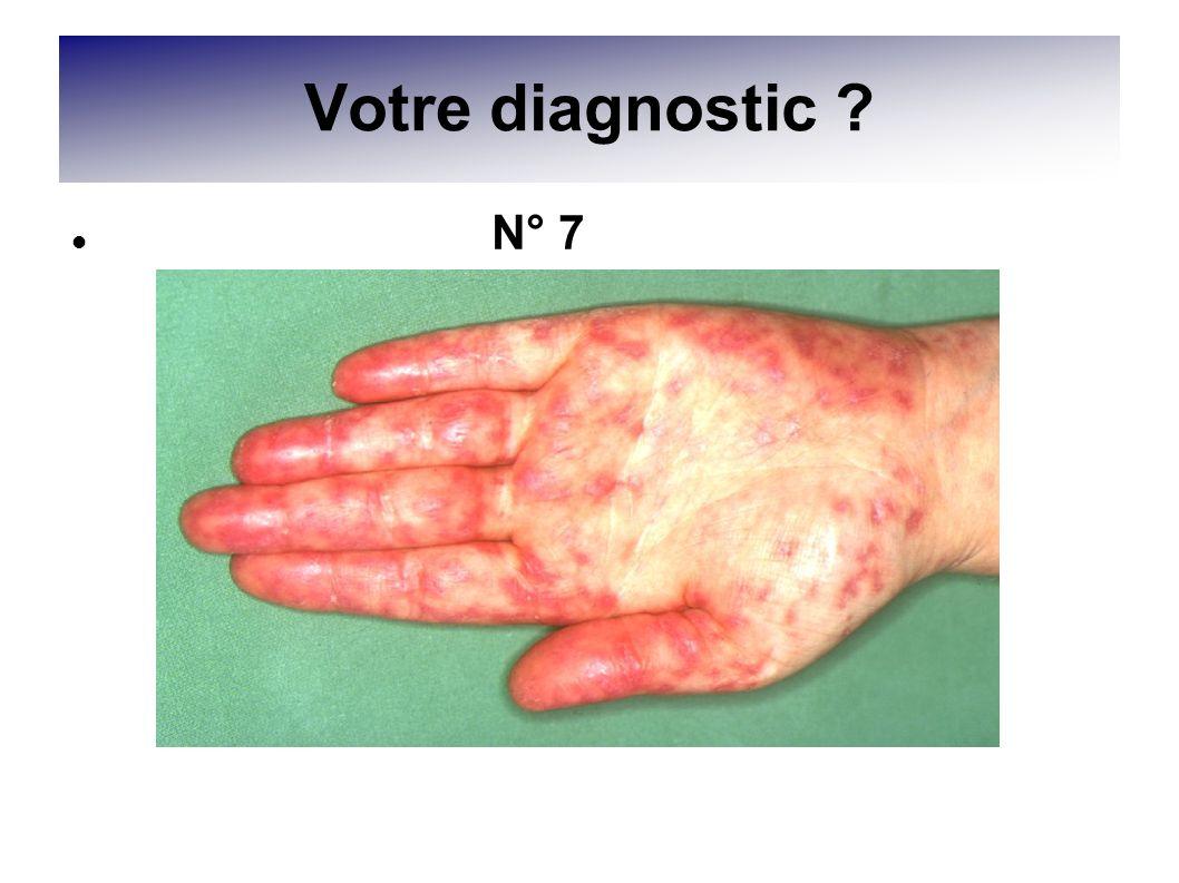 Votre diagnostic N° 7