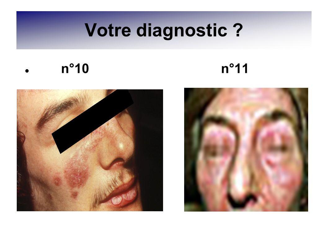 Votre diagnostic n°10 n°11
