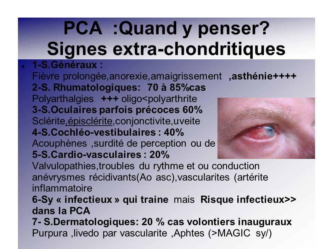 PCA :Quand y penser Signes extra-chondritiques