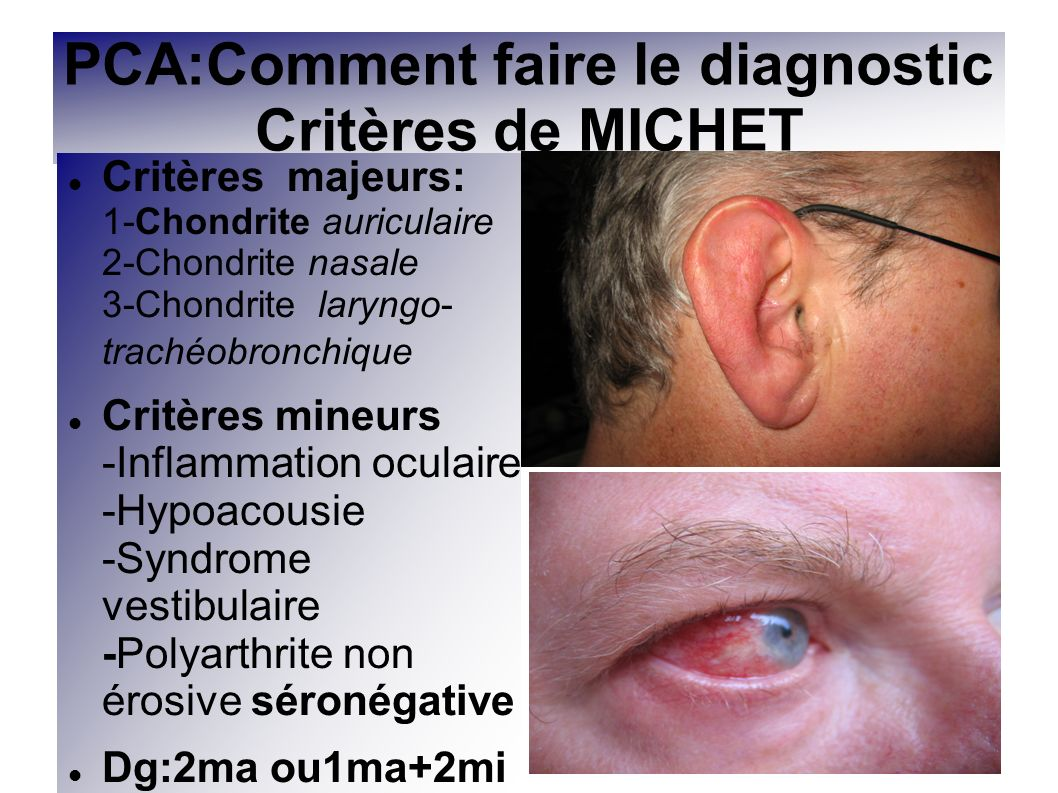 PCA:Comment faire le diagnostic Critères de MICHET