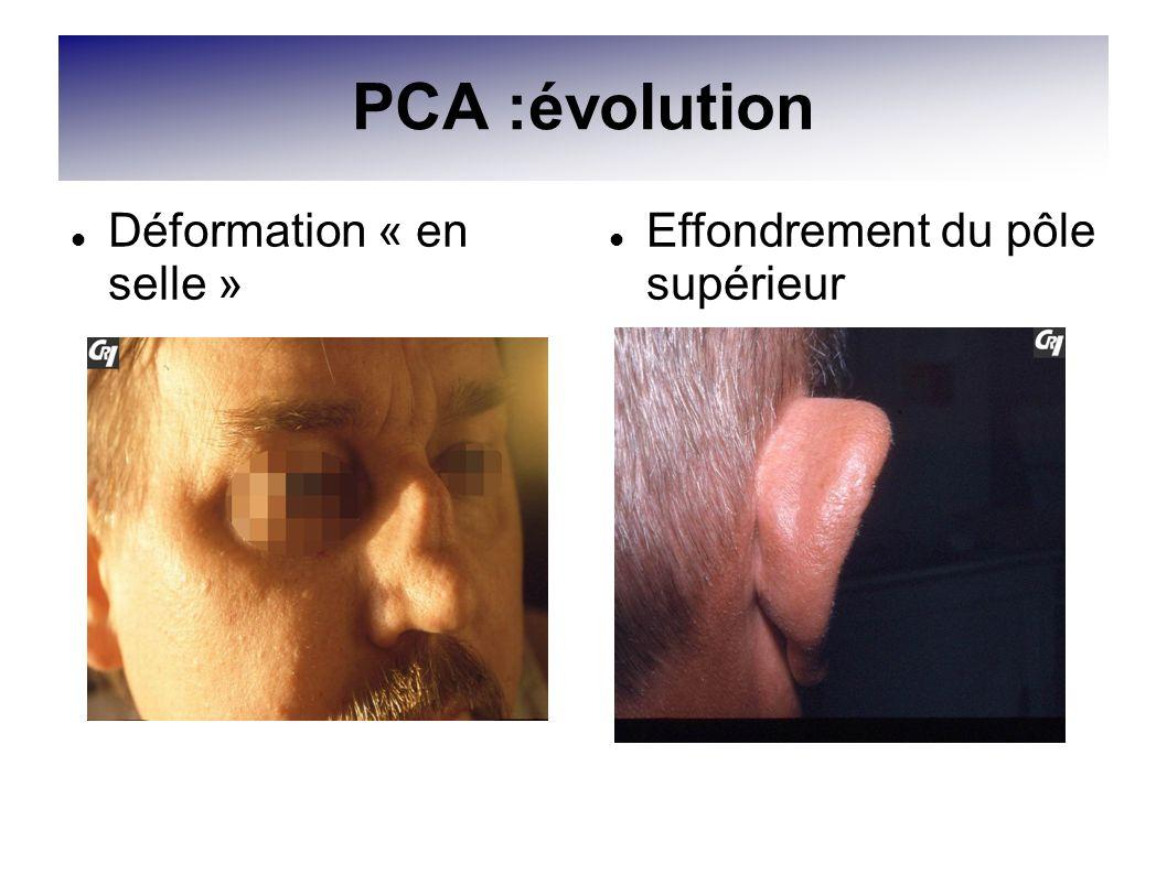 PCA :évolution Déformation « en selle » Effondrement du pôle supérieur