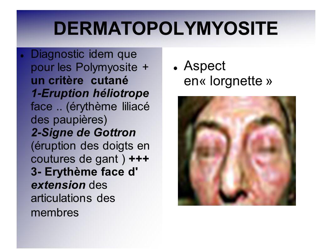 DERMATOPOLYMYOSITE Aspect en« lorgnette »