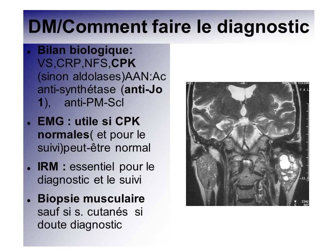 DM/Comment faire le diagnostic