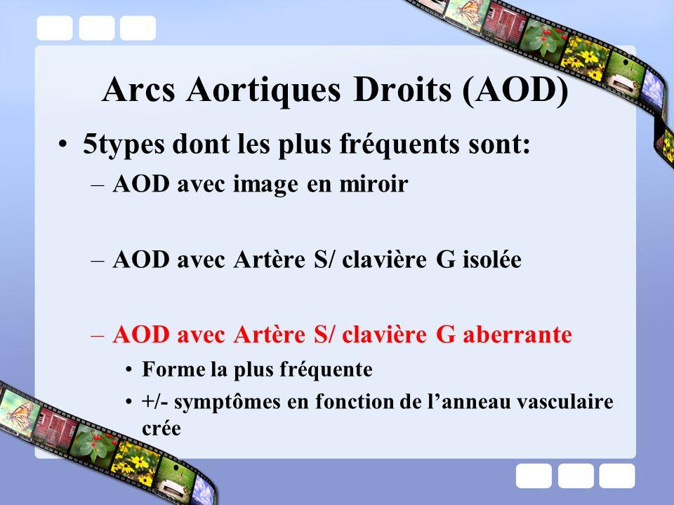 Arcs Aortiques Droits (AOD)