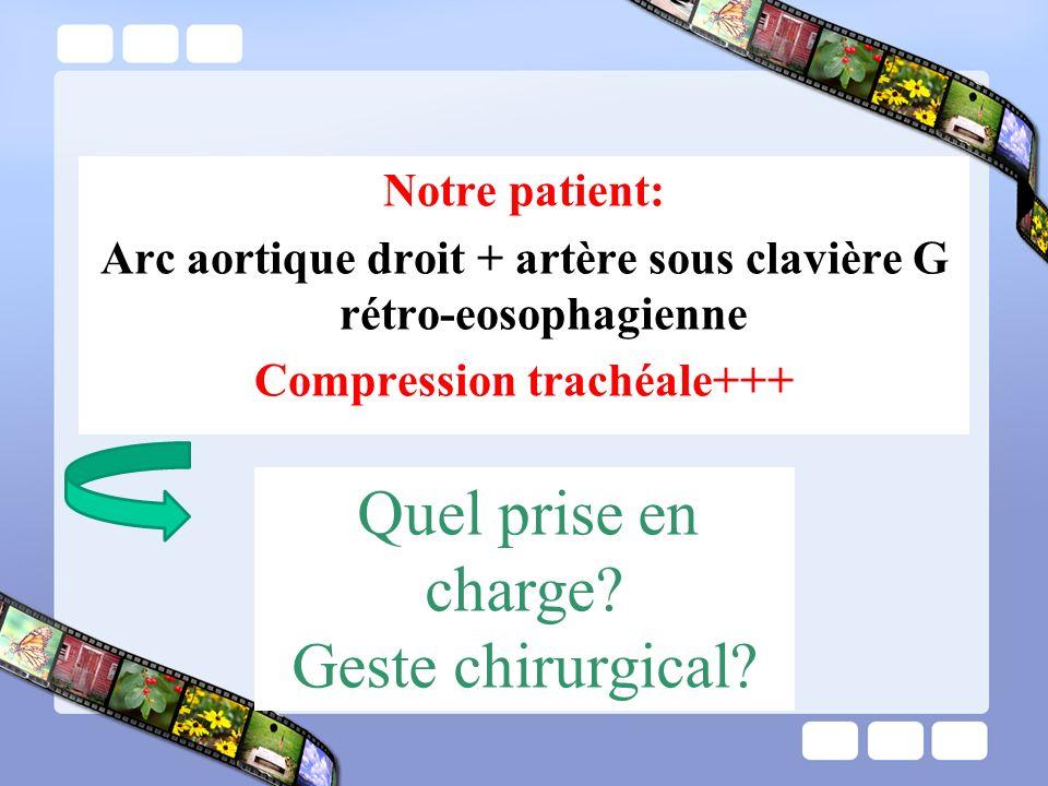 Notre patient: Arc aortique droit + artère sous clavière G rétro-eosophagienne Compression trachéale+++