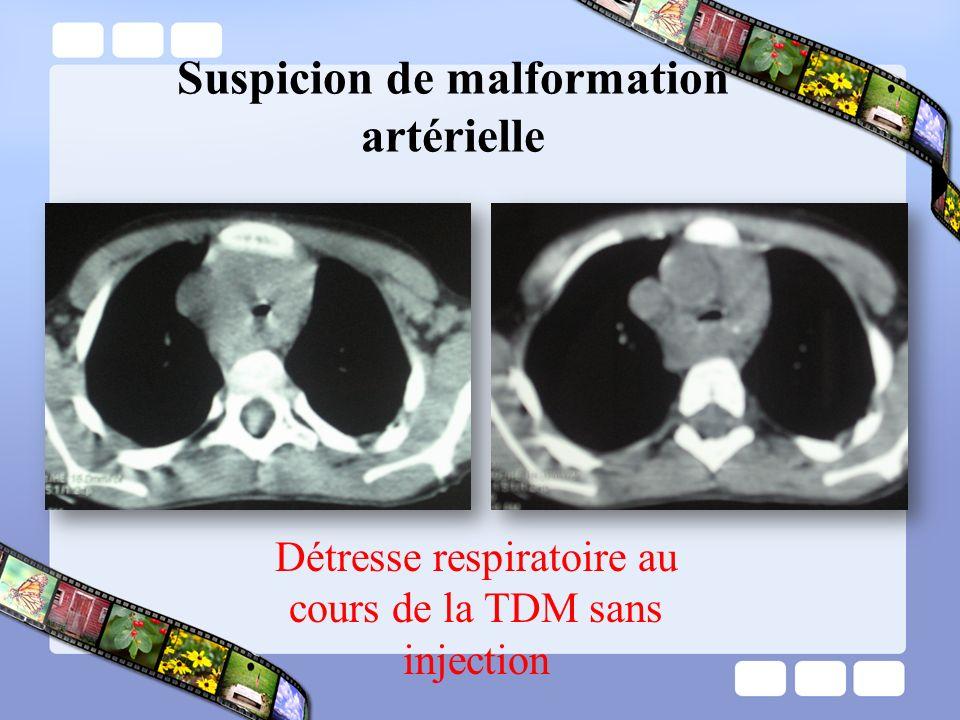 Suspicion de malformation artérielle