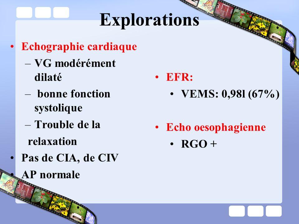Explorations Echographie cardiaque VG modérément dilaté
