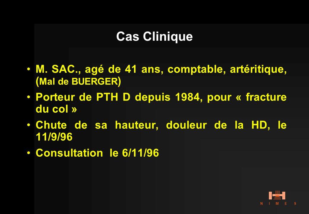 Cas CliniqueM. SAC., agé de 41 ans, comptable, artéritique, (Mal de BUERGER) Porteur de PTH D depuis 1984, pour « fracture du col »