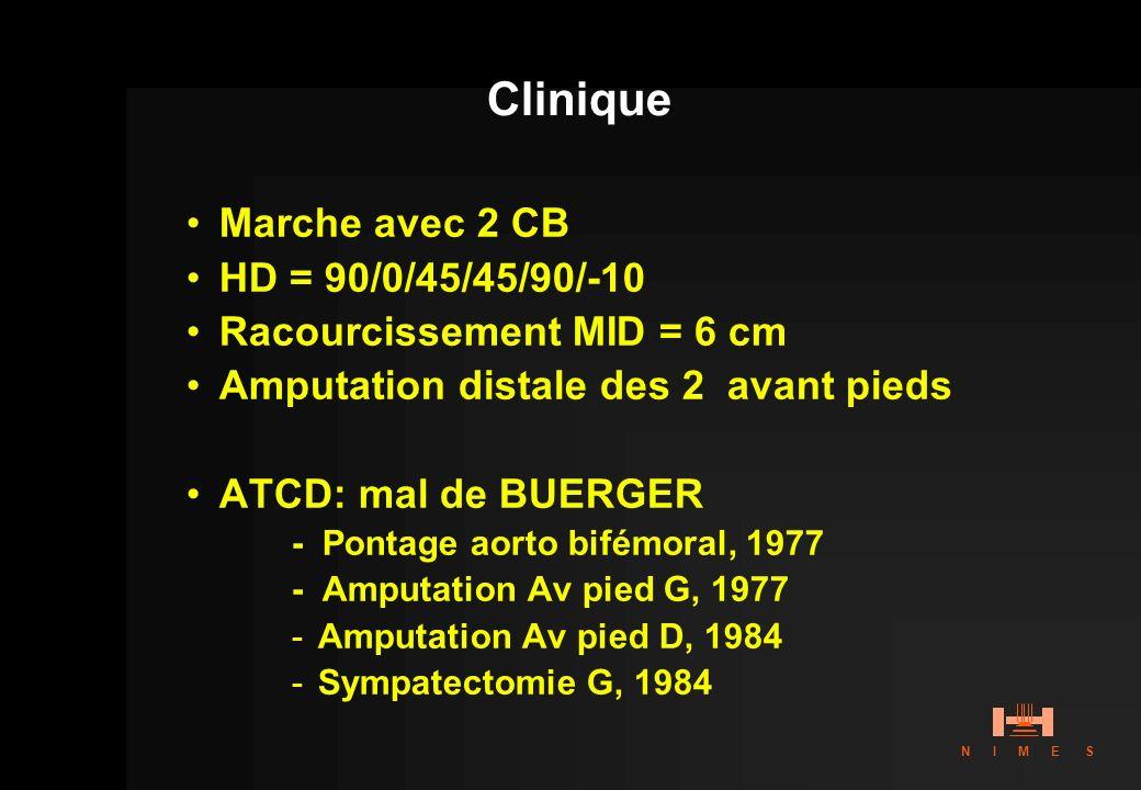 Clinique Marche avec 2 CB HD = 90/0/45/45/90/-10