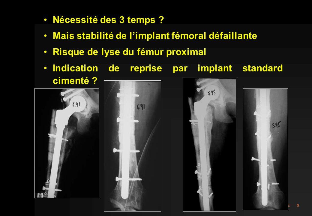 Nécessité des 3 temps Mais stabilité de l'implant fémoral défaillante. Risque de lyse du fémur proximal.