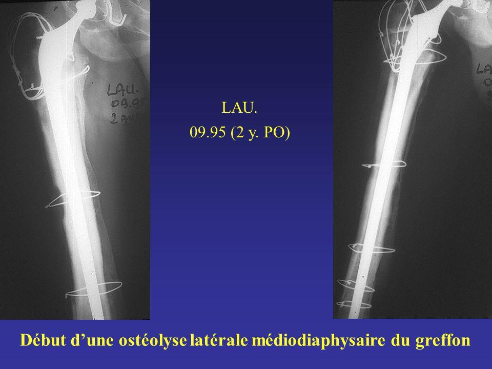 Début d'une ostéolyse latérale médiodiaphysaire du greffon