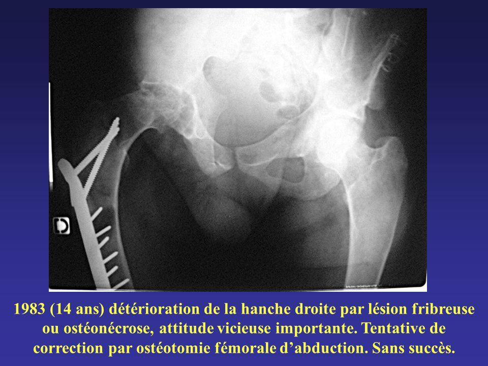 1983 (14 ans) détérioration de la hanche droite par lésion fribreuse ou ostéonécrose, attitude vicieuse importante.
